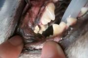 上顎第1後臼歯{d42}
